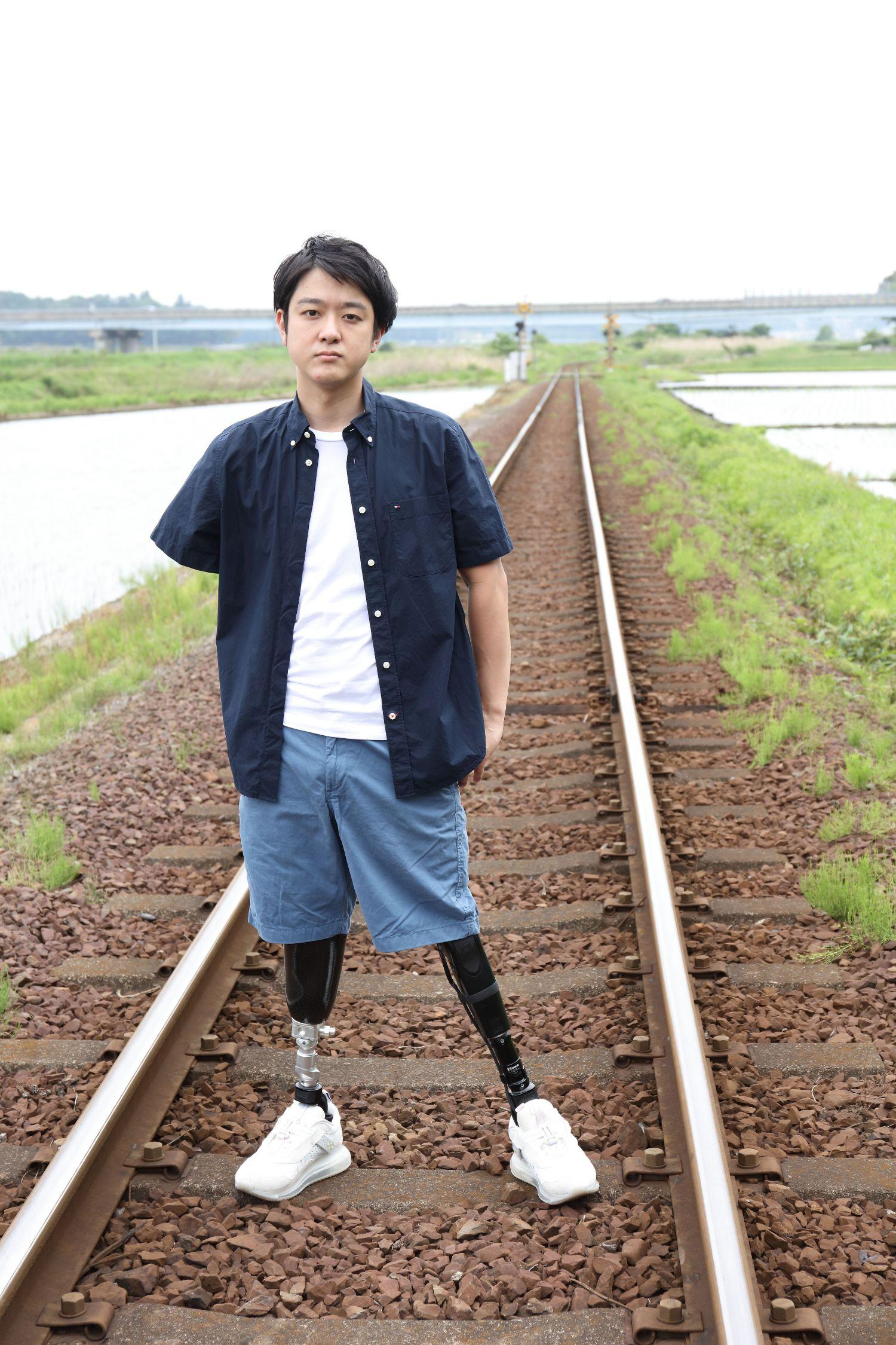 山田千紘が手足3本を失った訳とは?それでも前向きになれたのはなぜ?